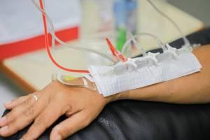 chimioterapie (1)